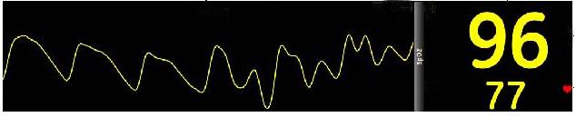 Oxímetro de pulso, oxímetro de dedo, saturação de oxigênio